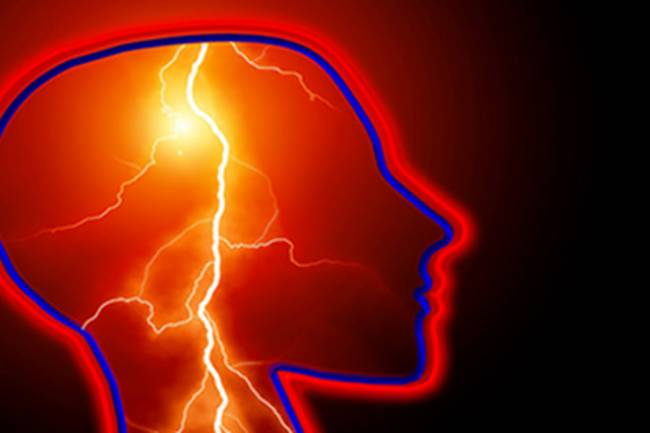 How to Reduce Your Stroke Risk