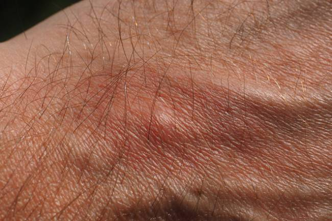 Top Supplements for Itchy Skin